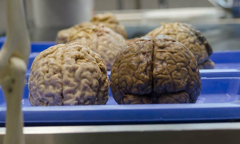 káva a jej vplyv na šedú kôru mozgovú